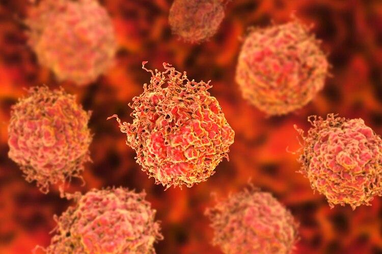 Sólo hay exámenes preventivos para un puñado de cánceres; el resto de diagnostica por síntomas.