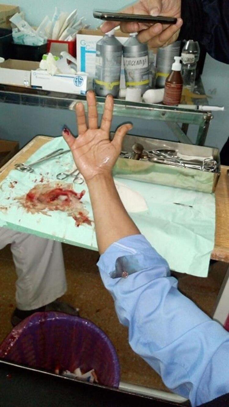 El chofer mientras era atendido en el Hospital Fiorito