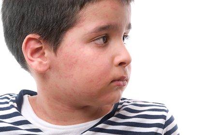 Con respecto a la edad, todos los grupos pueden verse afectados pero los niños son más propensos a padecerla