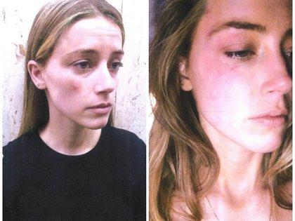 La actriz mostró fotografías de las huellas que dejaron en su rostro las agresiones que sufrió por parte de Depp