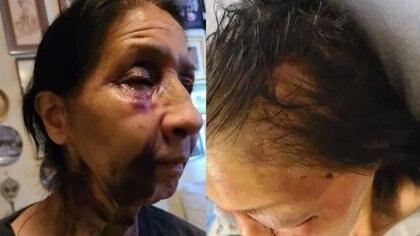 Atacaron brutalmente a una mexicana de 70 años en Los Ángeles: la agresora pensó que era asiática