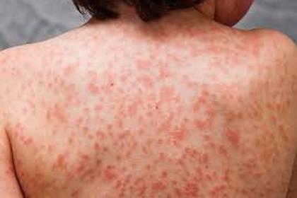 Esta afección produce la inflamación de gran parte de los vasos sanguíneos del organismo y podría tener una relación causal con el COVID-19 (OMS)