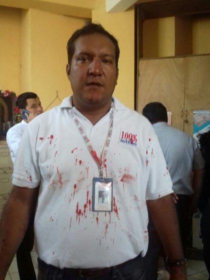 Los periodistas también fueron atacados por las turbas sandinistas