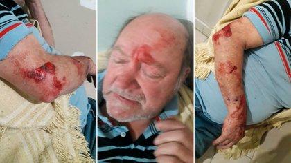 La heridas de Jorge Ríos tras el robo