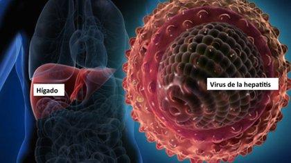 El virus de la hepatitis se puede curar en muchos casos (iStock)