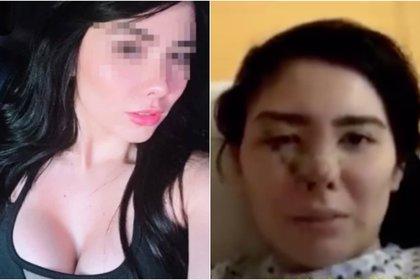 "Kimberly ""N"" de 29 años fue rafagueada con seis disparos (Foto: Archivo)"