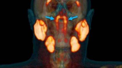 El nuevo descubrimiento muestra lo que parece ser un par de glándulas previamente pasadas por alto, situadas detrás de la nariz y por encima del paladar, cerca del centro de la cabeza humana (Radiotherapy and Oncology)