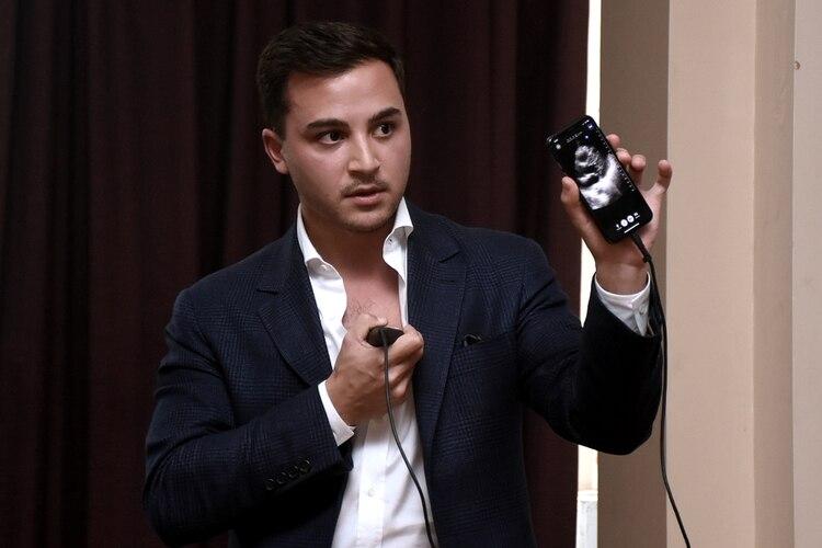 Darius Shahida, Chief Strategy Officer & Chief Business Development Officer de la compañía, escaneó y mostró en su propio celular imágenes de su arteria carótida
