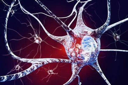 El exceso de depósitos de la proteína alfa-sinucleína, conocidos como cuerpos de Lewy, se acumulan dentro de las neuronas, causando daño a ciertas partes del cerebro y, como resultado, una disminución en la cognición y el movimiento