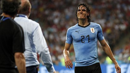 Injured Uruguay's Edinson Cavani walking out the match during the round of 16 match between Uruguay and Portugal at the 2018 soccer World Cup at the Fisht Stadium in Sochi, Russia, Saturday, June 30, 2018. (AP Photo/Francisco Seco)