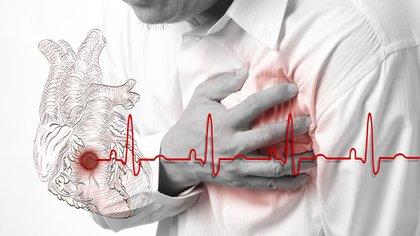 Las consultas a la Unidad de Emergencias por accidente cerebrovascular (ACV) en el FLENI bajaron a la mitad entre marzo y mayo de 2020 y en comparación con 2019 (Foto: Shutterstock)