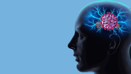 Muchos otros síntomas relacionados con el cerebro que van desde convulsiones hasta psicosis (Shutterstock)