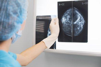 Existe hoy en día una protección contra rayos muy alta, por lo que la dosis de radiación que reciben las pacientes en el estudio es muy baja, y permite detectar lesiones de un pequeño tamaño que hacen que el cáncer de mama realmente sea curable (Getty Images)