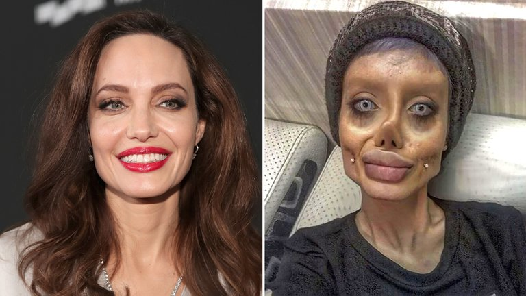 La joven que se opero 50 veces para parecerse a Angelina Jolie.
