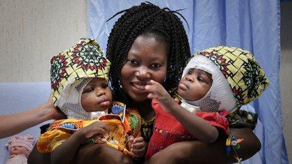 Las siamesas, nacidas en la República Centroafricana, llegaron a Italia en septiembre de 2018 después de que el director del hospital aceptó recibirlas (AFP)