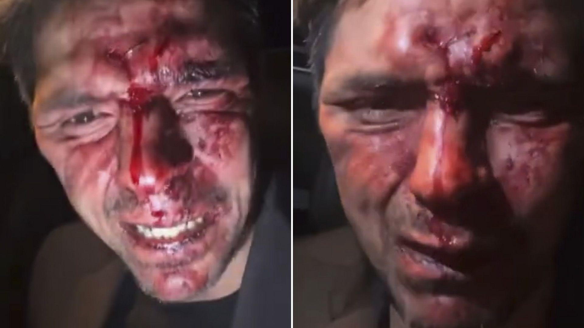 Hijo de Lupita D'Alessio acusó al político Arturo Montiel de golpearlo