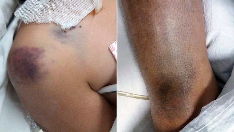 Los golpes en el cuerpo de Elizabeth Zurita.