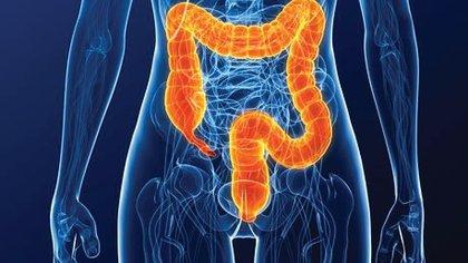 El cáncer colorrectal (CCR) se desarrolla en el colon y el recto (intestino grueso). En más del 80% de los casos, se genera primero un pólipo -  IBEROINVESA
