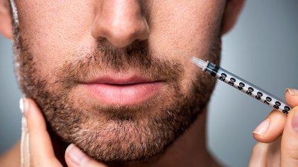 El ácido hialurónico, el relleno estrella elegido por los hombres para el mentón y mandíbula (Shutterstock)