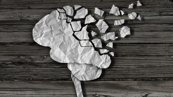 El Alzheimer se desencadena por acumulaciones anómalas de proteína amiloide (Shutterstock)