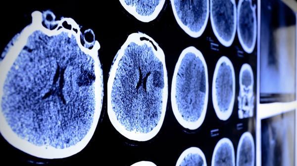 El estudio vinculó el uso del celular con los tumores cerebrales (Shutterstock)