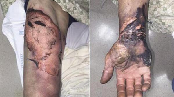 Los 15 pacientes tratados por la Universidad de Washington presentaron severas quemaduras