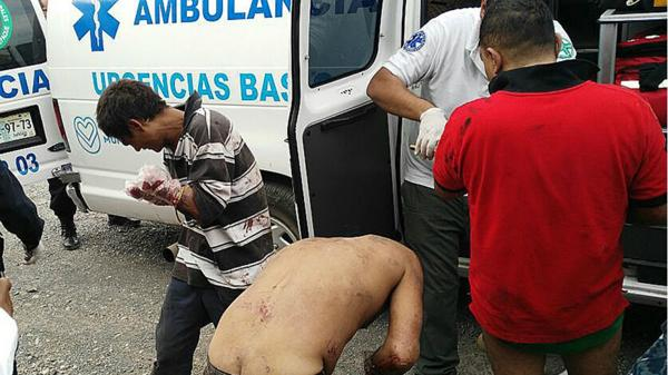 """Los seis mutilados fueron atentidos por una ambulancia y estaban en """"estado de shock"""" (EFE)"""