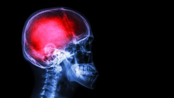El 73% de los argentinos asegura conocer los síntomas de un ACV (iStock)