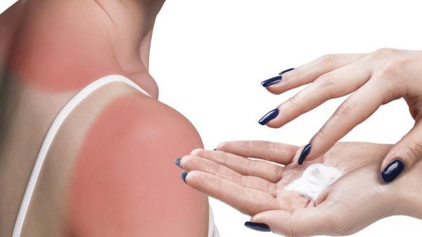 Las quemadura, la irritación pueden evitarse(iStock)