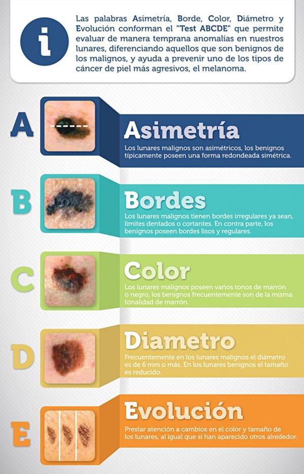 El método ABCDE para revisar lunares y manchas de la piel (MSD Oncología)